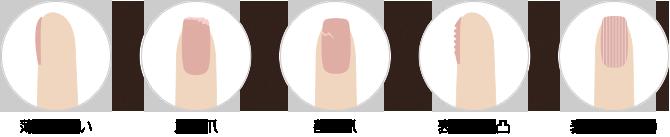 さまざまな原因で傷んでしまった爪も、カルジェルで補強できます